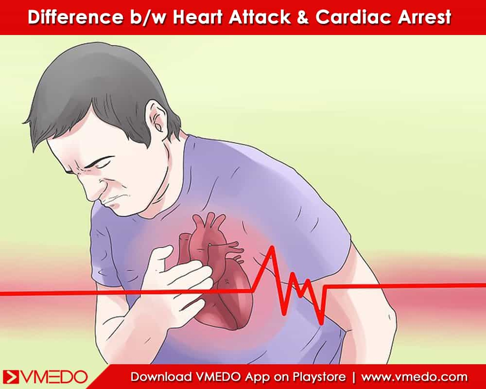 heartattack-and-cardiacarrest-diffrence