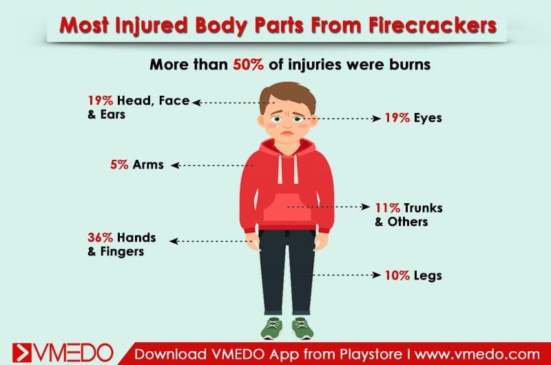 injured_bodyparts-firecrackers