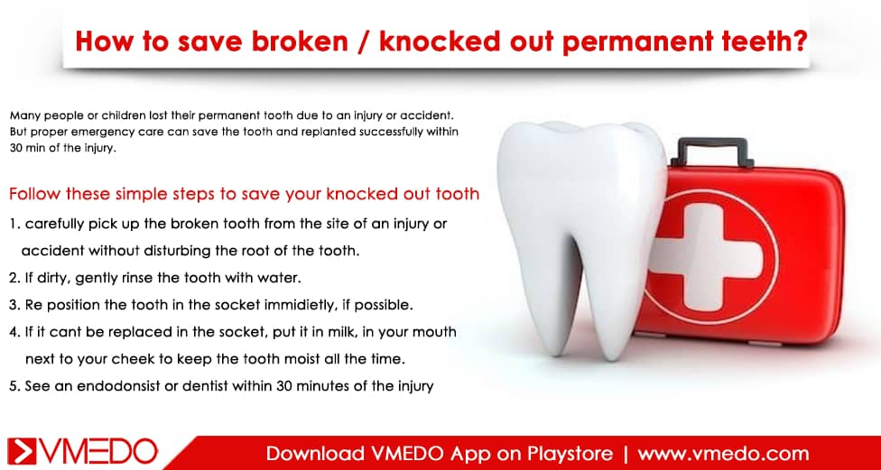 knocked-out-teeth